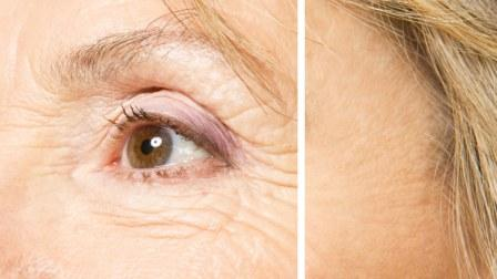 How to Reduce Wrinkles Around Eyes
