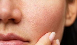 How to get rid of red spots on Skin